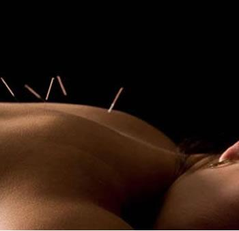 /Acupuncture%20Clinic